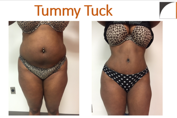 Tummy tuck abdominoplasty before& after Vienna VA