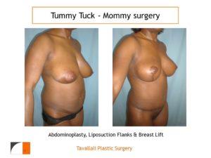 Mommy Surgery Tummy tuck abdominoplasty and Breast lift lipo flanks