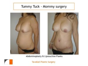 Mommy surgery result