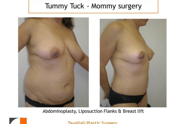 Mommy Surgery Tummy tuck abdominoplasty and Breast lift result