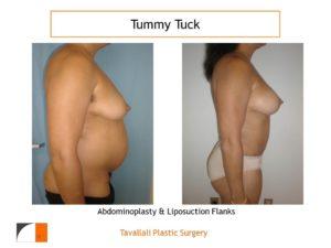 Profile view Tummy tuck and breast lift mastopexy
