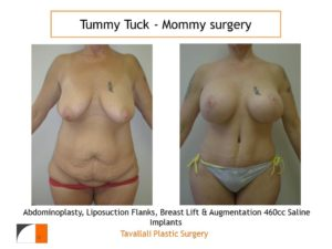Mommy Surgery Tummy tuck abdominoplasty and Breast lift and augmentation with 460 cc implant
