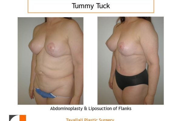 Mommy surgery in 2 stages Breast lift and then Tummy tuck before after