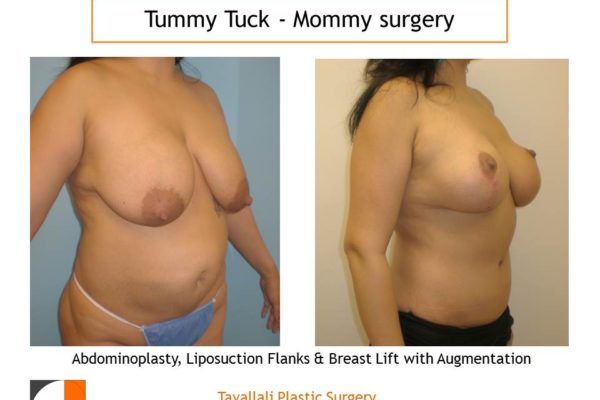 Mommy Surgery Tummy tuck abdominoplasty and Breast lift and augmentation with implant VA