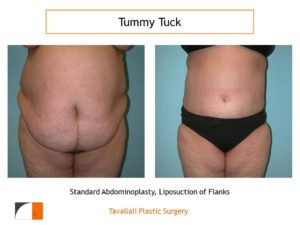 Large woman before after tummy tuck