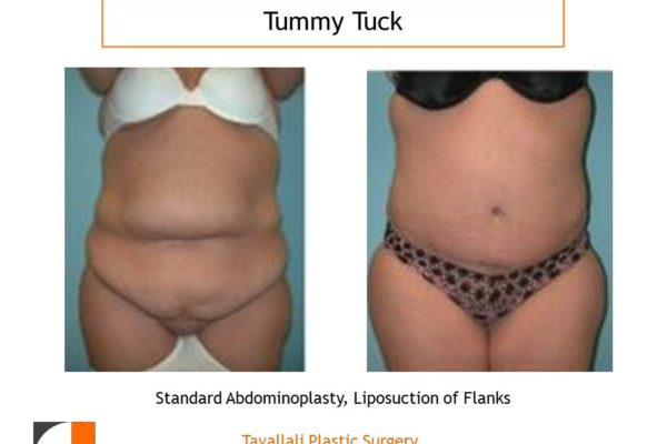 Woman with big tummy before and after a tuck abdominoplasty