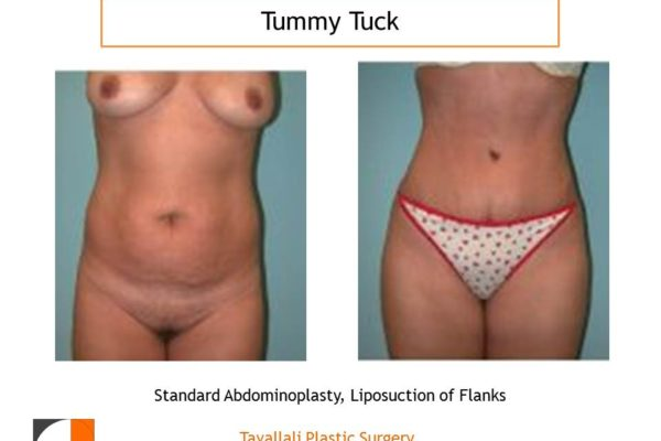 Small woman before after tummy tuck abdominoplasty surgery in No VA