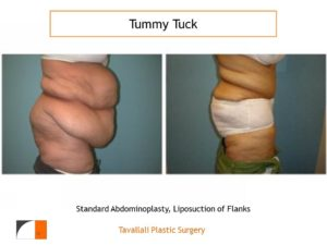 Obese woman before and after tummy tuck