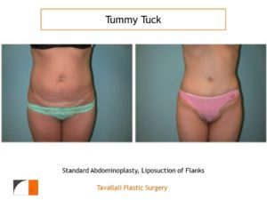 Thin woman before after tummy tuck abdominoplasty surgery Virgnia