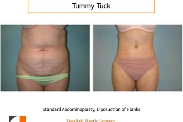 Before & after tummy tuck abdominoplasty surgery in Tyson's corner