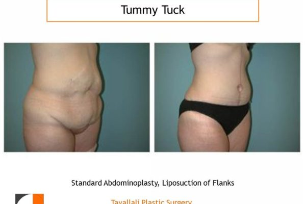 Before & after tummy tuck abdominoplasty surgery with fleur de lys incision Tyson's corner
