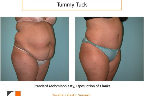 Large woman before after tummy tuck abdominoplasty VA