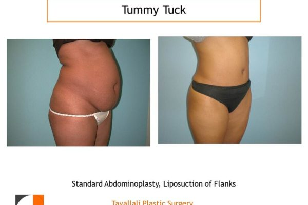 Standard Tummy tuck abdominoplasty oblique view