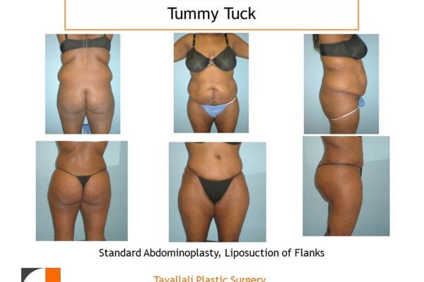 Back and front standard Tummy tuck abdominoplasty