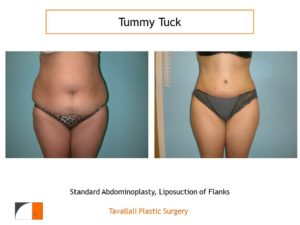 Full Tummy tuck abdominoplasty before after