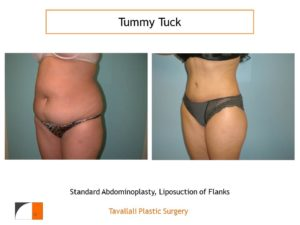 Full Tummy tuck abdominoplasty lipo flanks before after