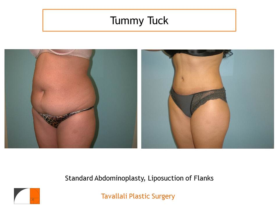 How is a Tummy Tuck Done?