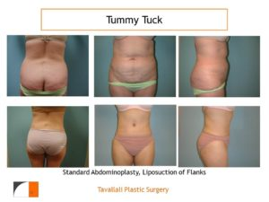 Front and back Full Tummy tuck abdominoplasty before after