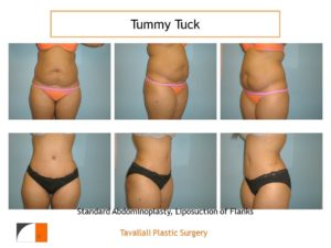 Full Tummy tuck abdominoplasty multiple views before after
