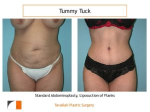Small woman before after tummy tuck abdominoplasty surgery
