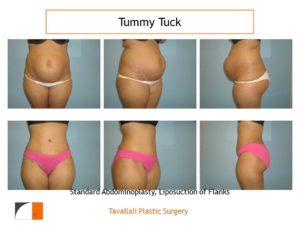 Multiple views full tummy tuck abdominoplasty