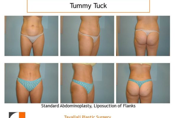 Abdominoplasty with liposuction of flanks
