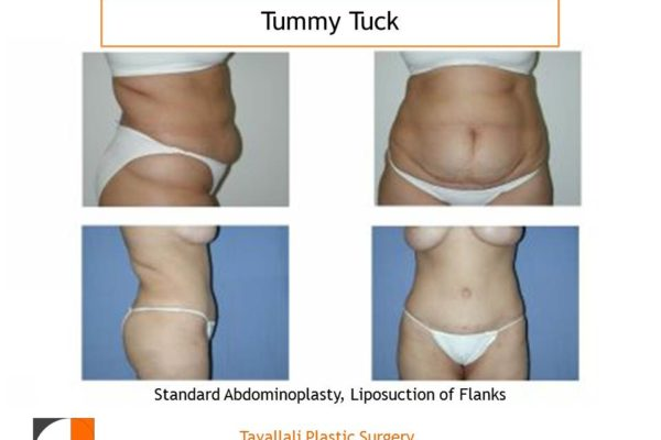 Full Tummy tuck abdominoplasty before after results