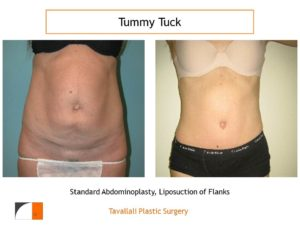 Thin woman before after tummy tuck abdominoplasty surgery
