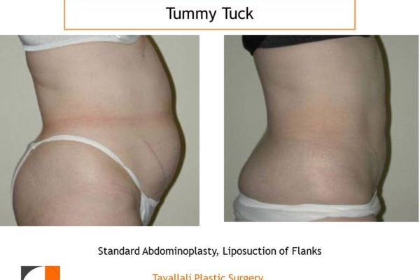 Trunk woman before after tummy tuck abdominoplasty surgery in Northern VA