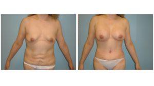 Tummy tcuk abdominoplasty after lower abdomen scarring