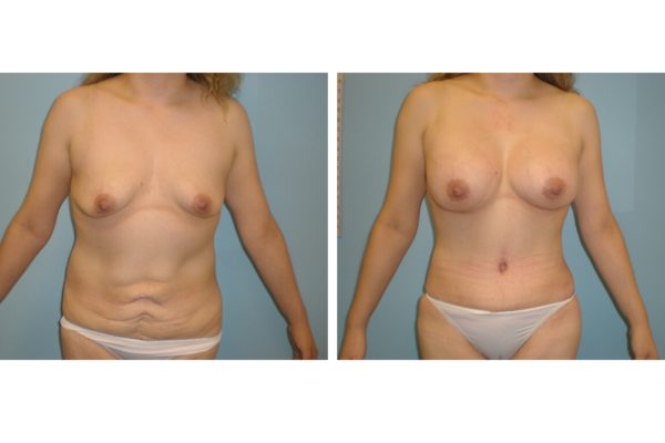 Tummy tcuk abdominoplasty after lower abdomen scarring
