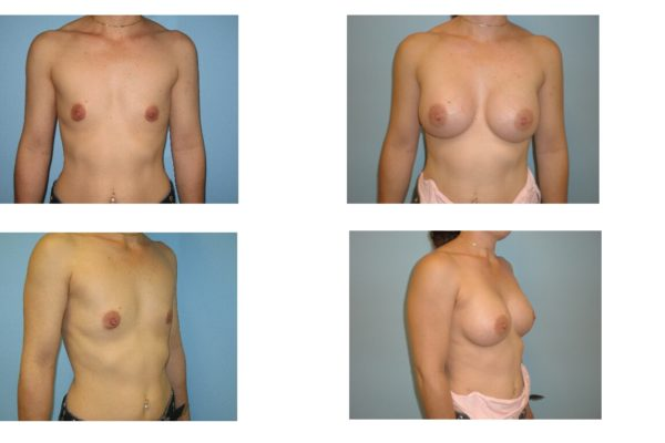 Breast implant surgery in woman with flat chest