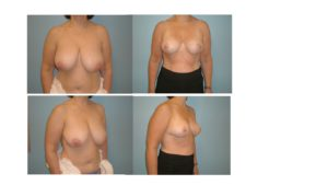 Breast reduction result with vertical mammoplasty before after