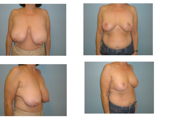 Results of breast reduction surgery northern VA