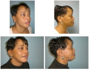 Woman before after facelift
