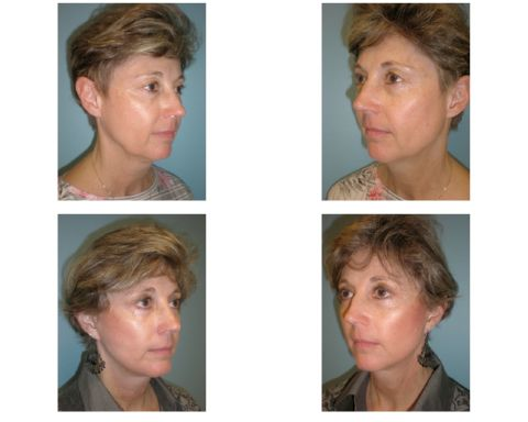 Facelift surgery results in woman