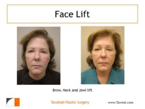 Full face lift and brow lift before and after result