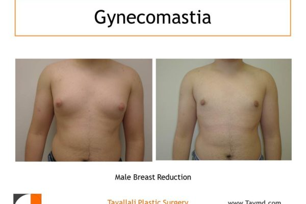 Male breast reduction Gynecomastia result