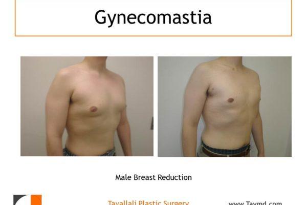 Gynecomastia result