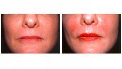 lip augmentation with dermal filler Juvederm Belotero