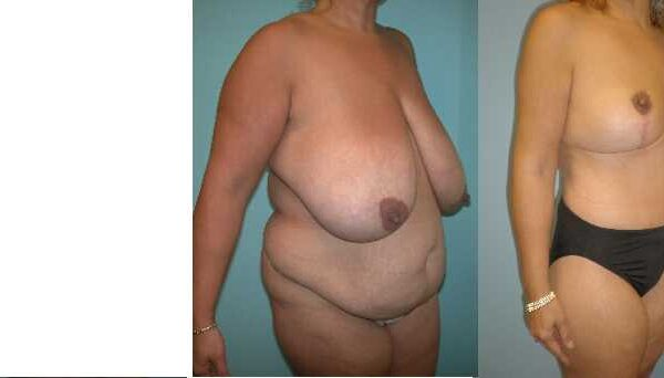 Mommy surgery abdominoplasty & breast reduction Vienna VA