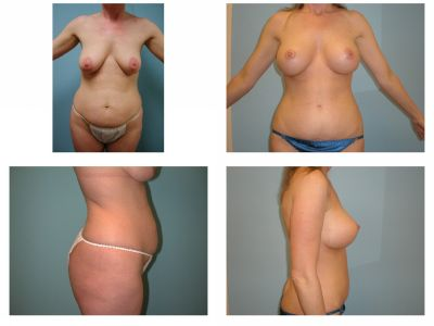 Mommy Surgery Tummy tuck abdominoplasty and Breast lift and augmentation with implant