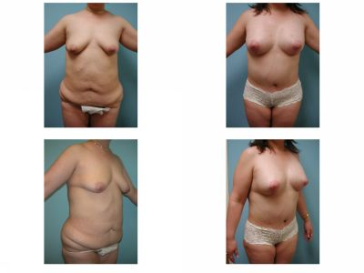 Mommy Surgery Tummy tuck abdominoplasty and Breast augmentation with implant before after