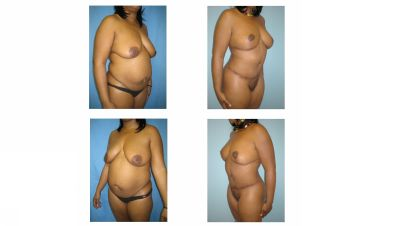 Mommy Surgery Tummy tuck abdominoplasty and Breast augmentation with implant results in multiple views