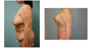Mommy Surgery Tummy tuck abdominoplasty and Breast augmentation with implant