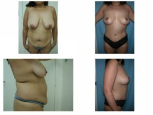 Mommy Surgery Tummy tuck abdominoplasty and Breast lift before after