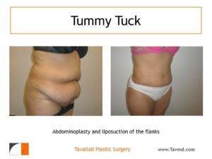 Full Tummy tuck abdominoplasty before after result
