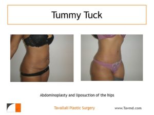 Full Tummy tuck abdominoplasty lipo hips before after