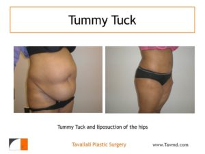 Full Tummy tuck abdominoplasty before after with muscle tightening