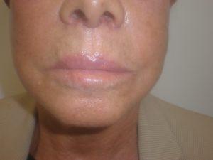After a lip lift